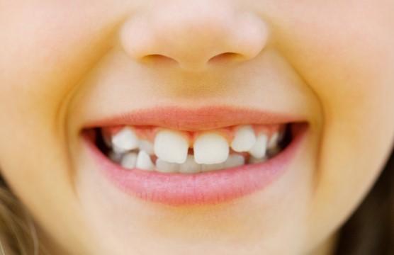 Dientes apiñados ortodoncia arguelles