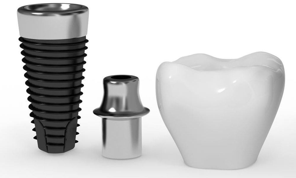 Implantes dentales Argüelles