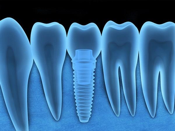 implantes dentales periimplantitis