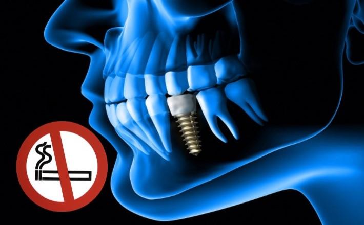Implantes-dentales-tabaco