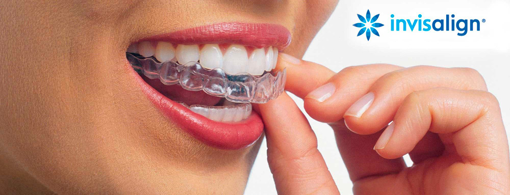 InterORALIA - Promoción Ortodoncias con Brackets