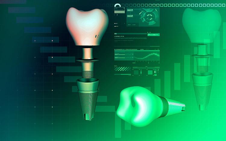 Cirugía implantes dentales guiada