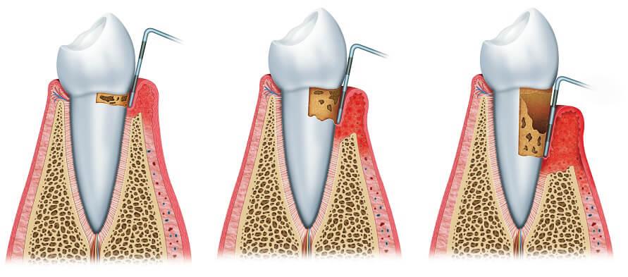 Curetajes dentistas en Madrid
