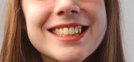 Dentista Madrid abrasión dental