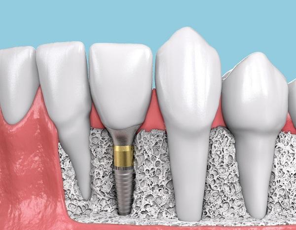 implante dental empaque