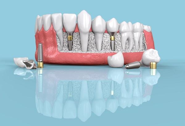 implantes dentales riesgos