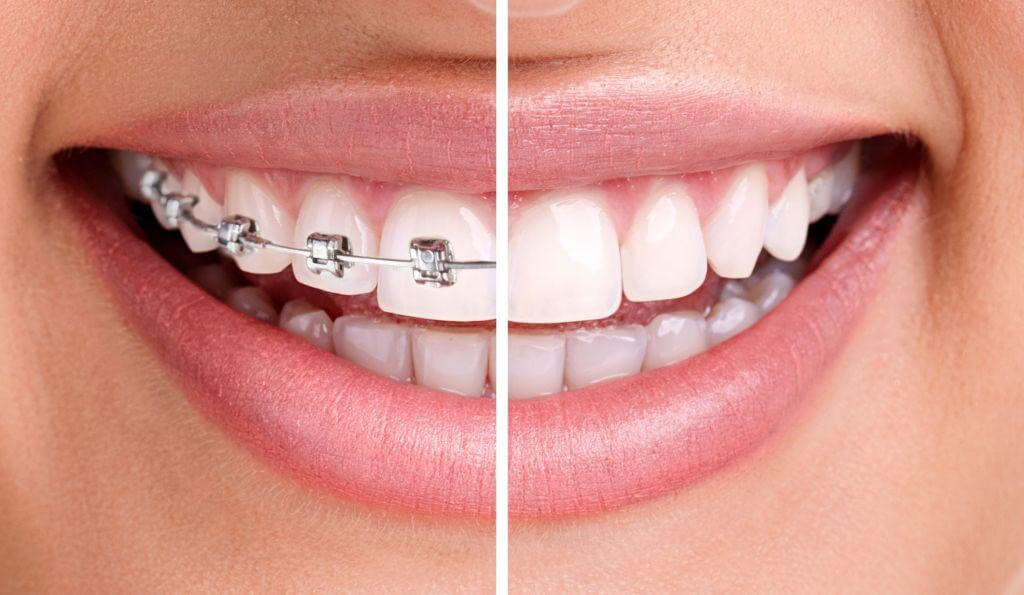 Invisalign dentistas Madrid
