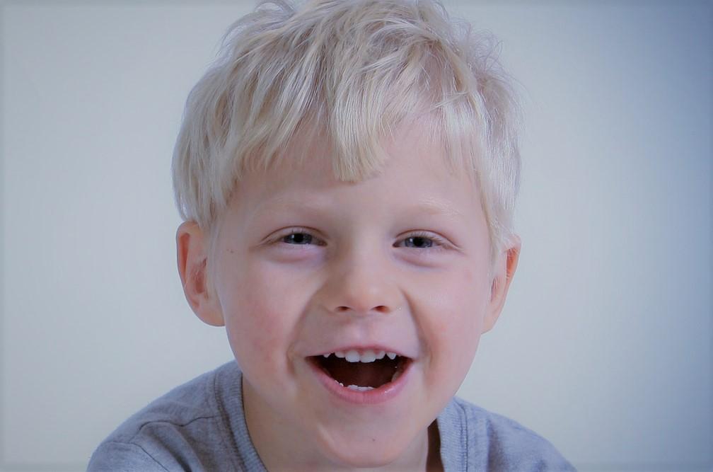 ortodoncia Madrid antes 6 años