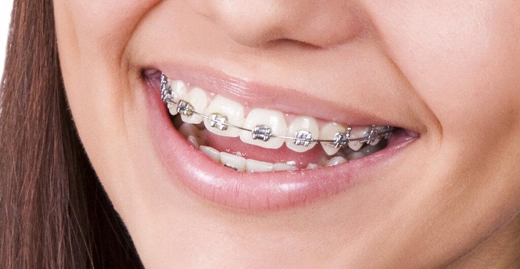 ortodoncia mordida abierta