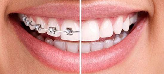 Ortodoncia en Arguelles