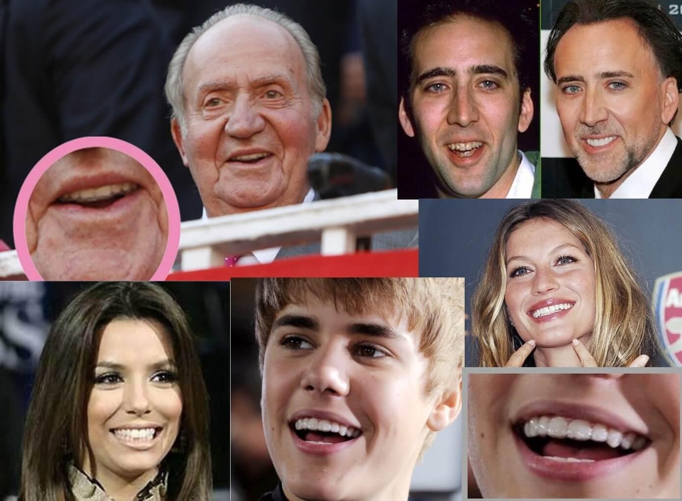 ortodoncia invisalign famosos