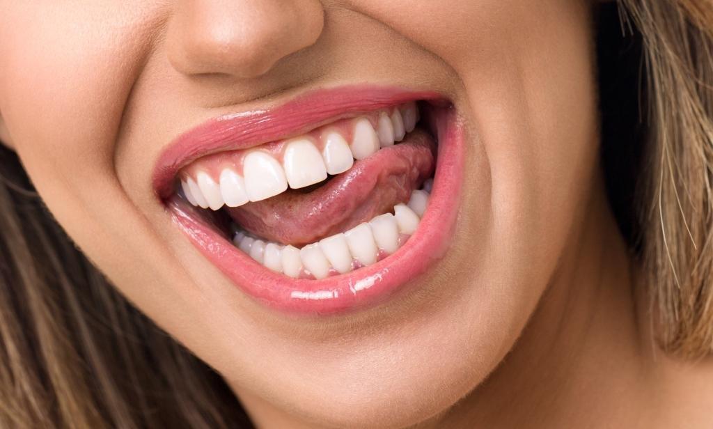 Tratamientos estética dental solicitados