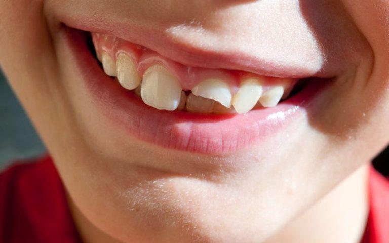 diente roto que hacer
